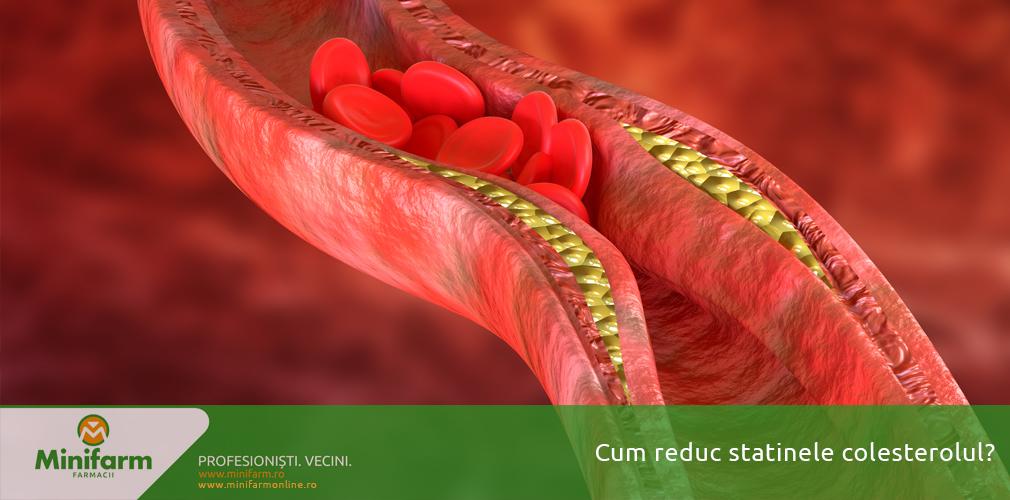 Cum reduc statinele colesterolul?